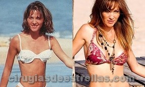 veronica lozano antes y despues