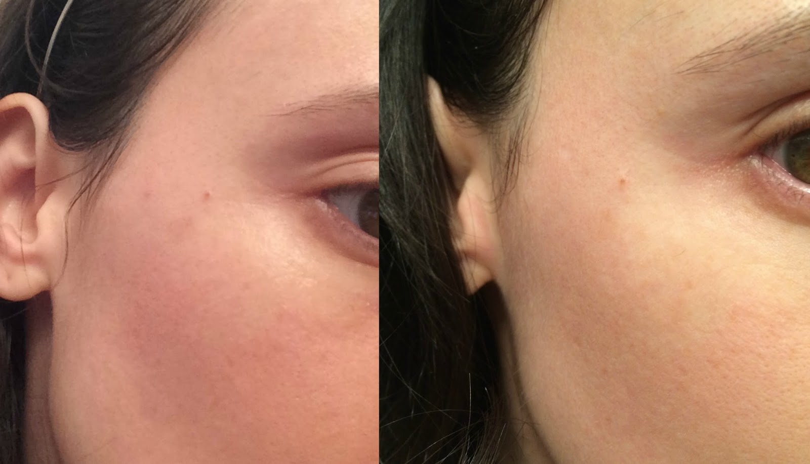 Before and after picture of Murad Age Spot and Pigment Lightening Serum