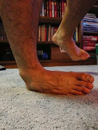 Inversion Sprain (Lateral Ankle Sprain)