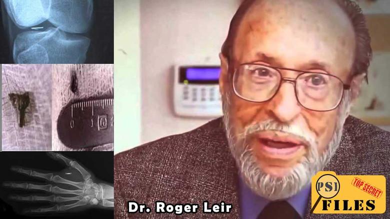 Ο Δρ Roger Lear και η μελέτη του για περιπτώσεις εμφύτευσης εξωγήινων εμφυτευμάτων στους ανθρώπους