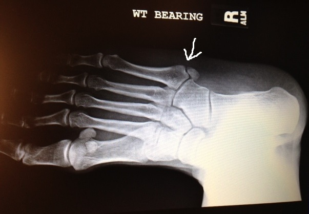 split at the arrow shows the avulsion fracture in my 5th metatarsal-4.bp.blogspot.com