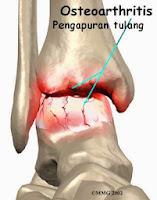 http://obatradangglambung.blogspot.com/2013/11/obat-pengapuran-tulang-alami.html