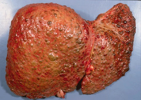 هل تعلم بما أوصانا الرسول حتى لا نصاب بالتليف الكبدي ؟؟