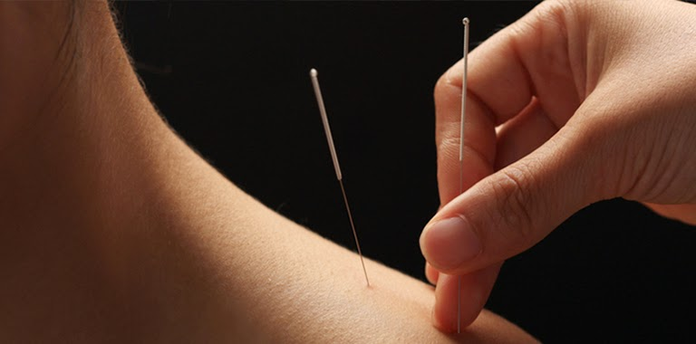 http://acupunturavitalmadrid.com/tecnicas_medicina_china.html