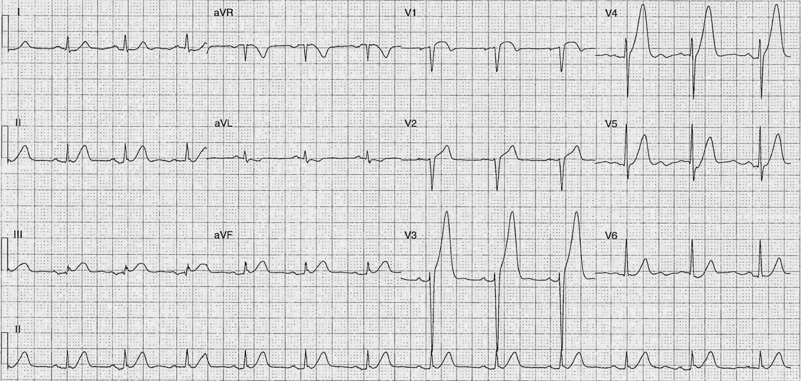 ecg of the week archives - page 99 of 190