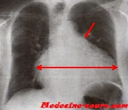 Cardiomégalie en carafe