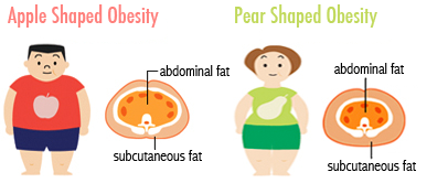 apple shaped vs. pear shaped obesity comparison image