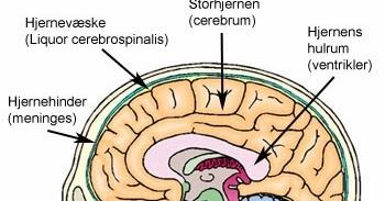 hjernehinder
