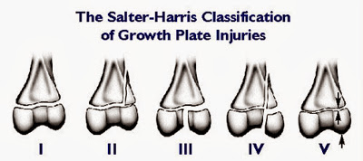 Growth Plate Injuries Causes, Symptoms, Diagnosis, Treatment And Prevention