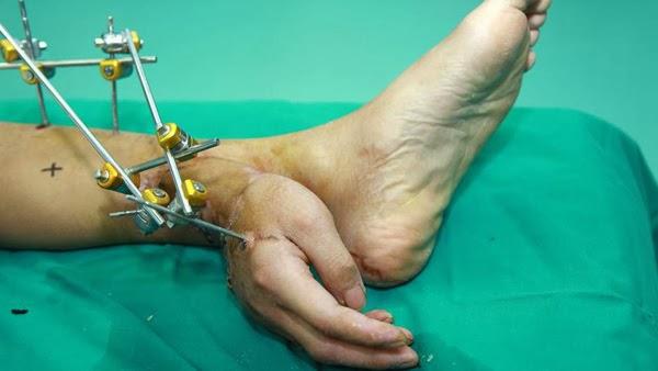 tangan cangkok di kaki