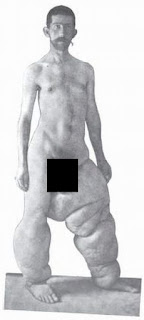 Indian guy with elephantitis elephantiasis of the legs censored black and white archived India