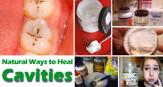 Naturally Cure Tooth Decay (Cavities)!