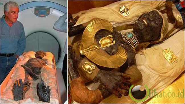 Rahasia Mummy Tutankhamen