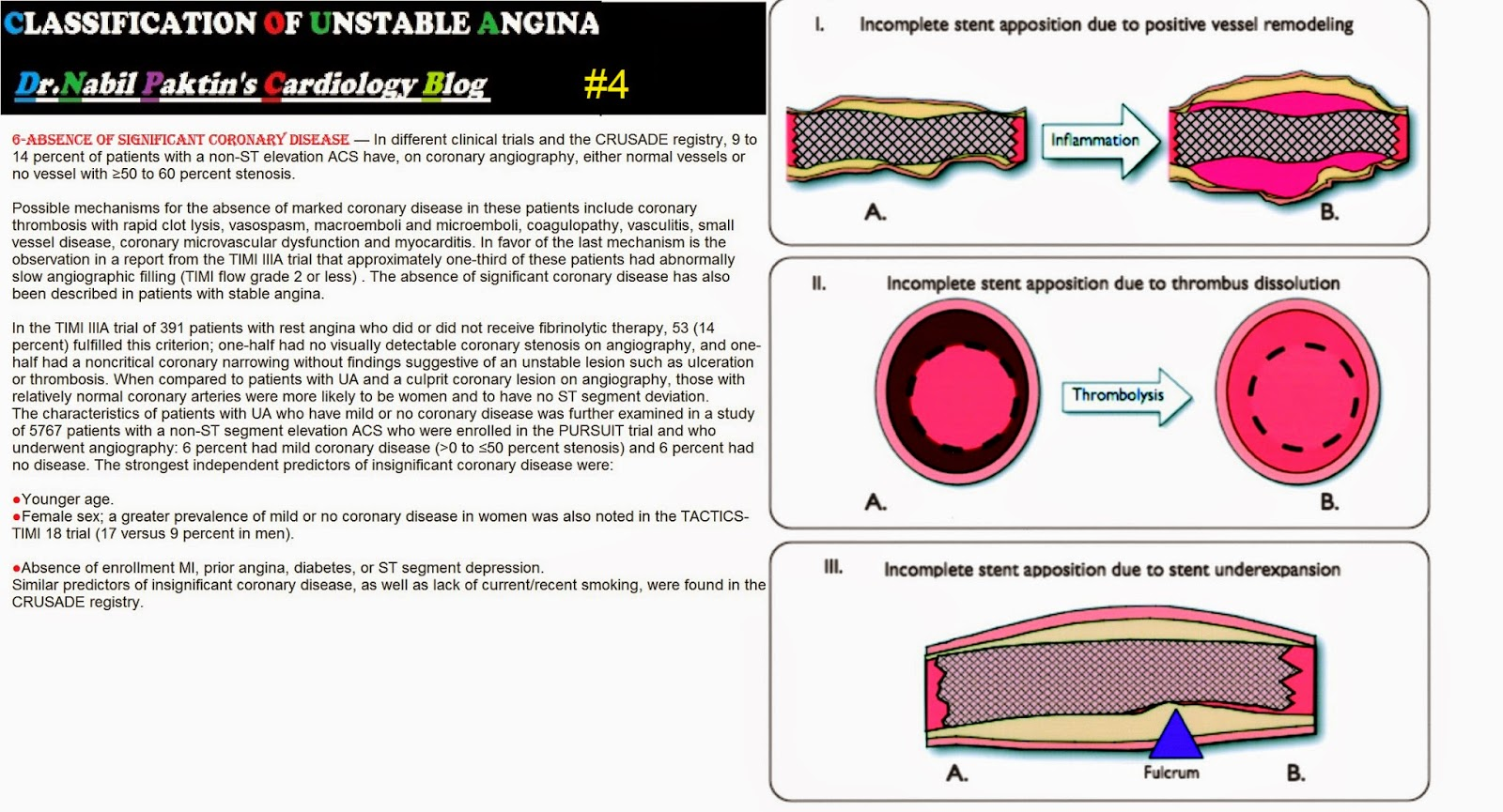 case study of unstable angina In this case, the pulse rate and in another study, it was found that, after one year  in hospitalized patients with unstable angina.