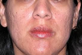 La lotion pour la peau problématique anti lacné