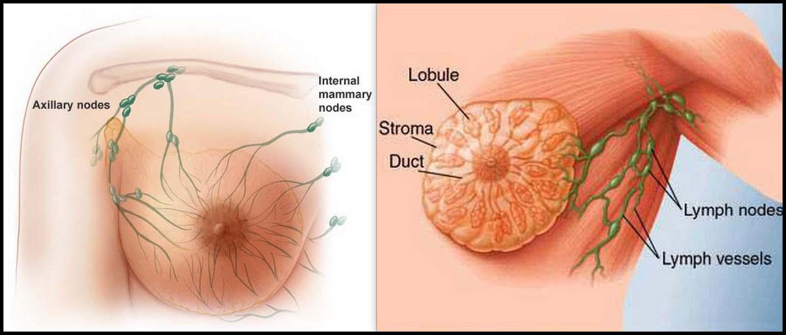 Image Obat Alami Untuk Menyembuhkan Penyakit Kanker Payudara