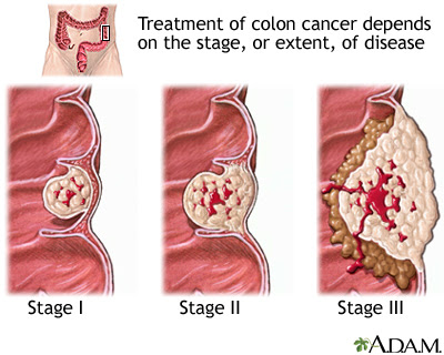What you must know about the colon cancer