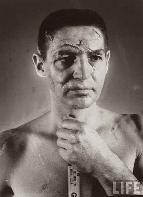 Terry Sawchuk - The face of a hockey goalie before masks became standard game equipment, 1966