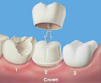 تاج الأسنان