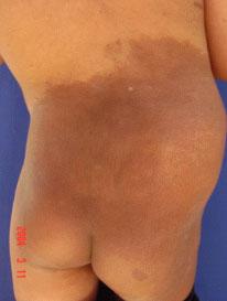 Los medios de las pecas y las manchas de pigmento de la crema