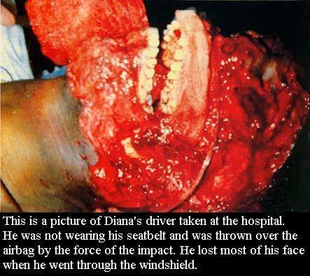 Faces of Jeffrey Dahmer Victims