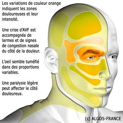 douleur de la face