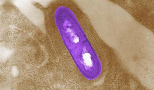 Infecção por Listeria: Sintomas e tratamento