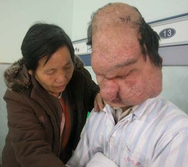 most horrible weirdest strangest diseases lion face-like syndrome yang hui ming