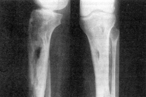 Control de infecciones en radiología