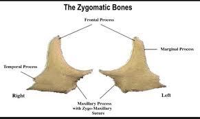 Zygomatic Facial 54