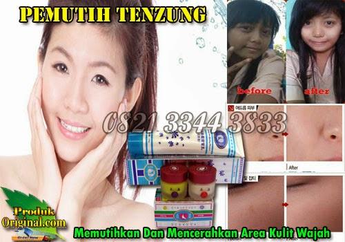 Tenzung Adalah Cream Pemutih Wajah Alami Berguna Untuk Memutihkan Serta Mencerahkan Wajah Secara Permanen.