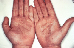 Fungal skin infections the facts | Health | Bupa UK