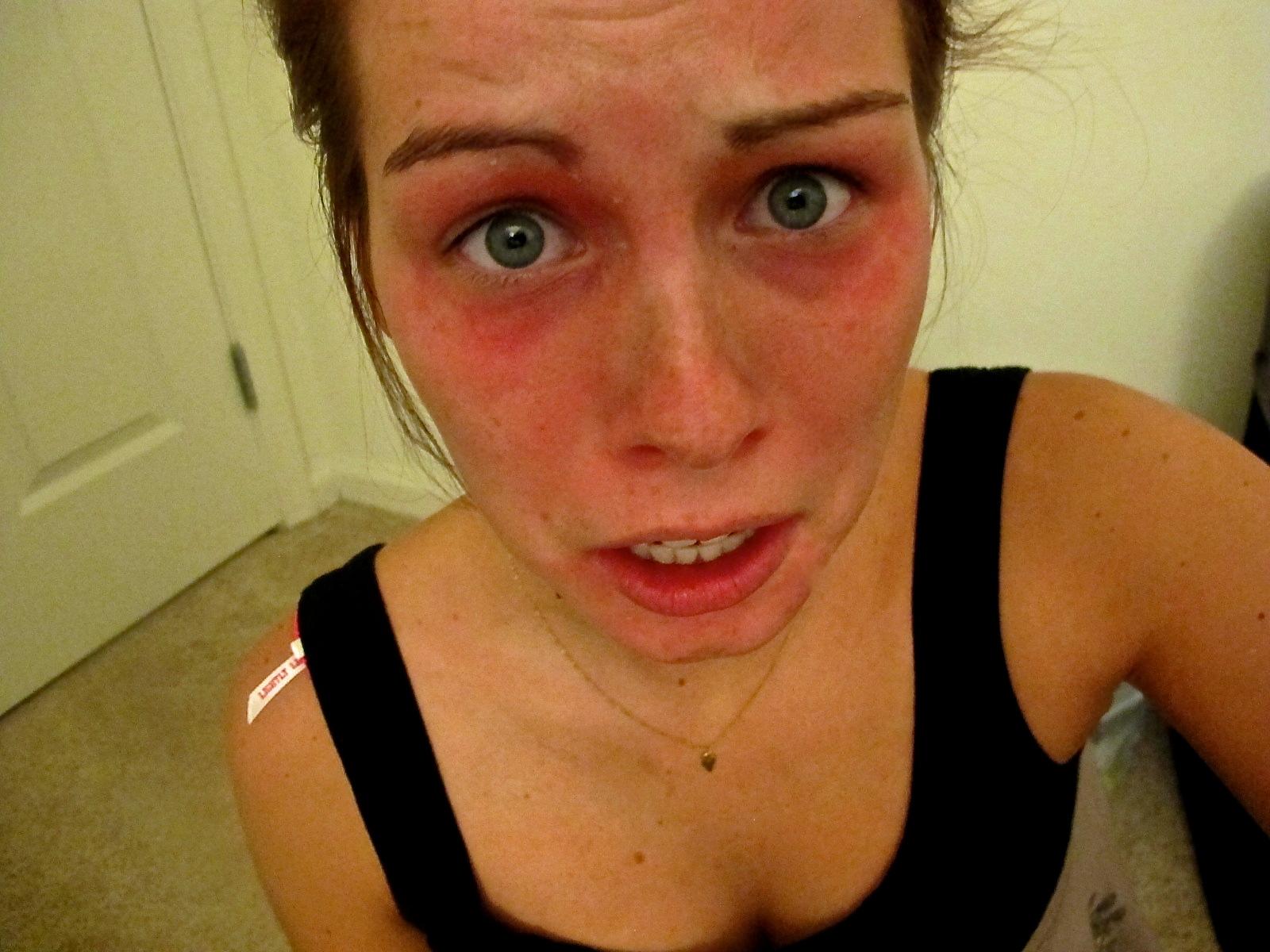 allergisk reaktion ögon