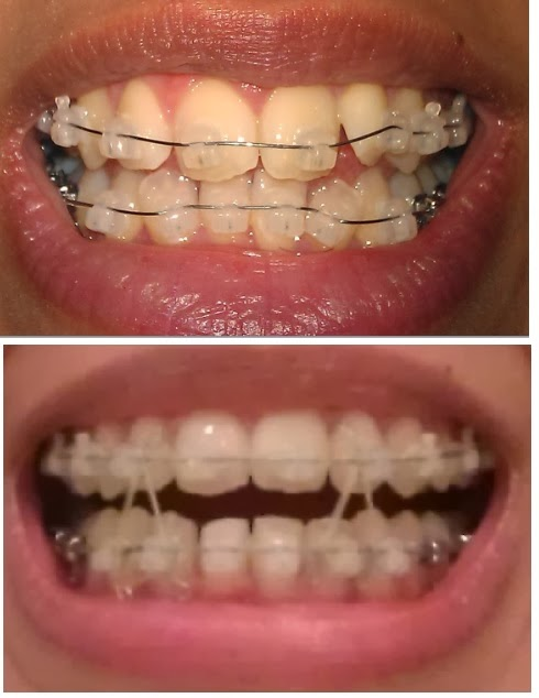 how to clean braces after eating