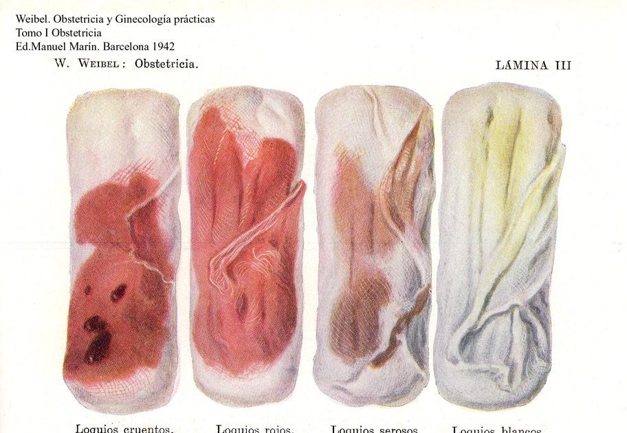 Sangrado de la vagina durante el embarazo