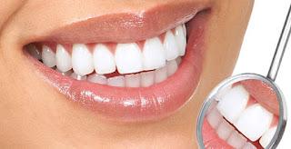 4 Cara Memutihkan Gigi Dengan Cepat Dan Mudah Dalam Sekejap Pola
