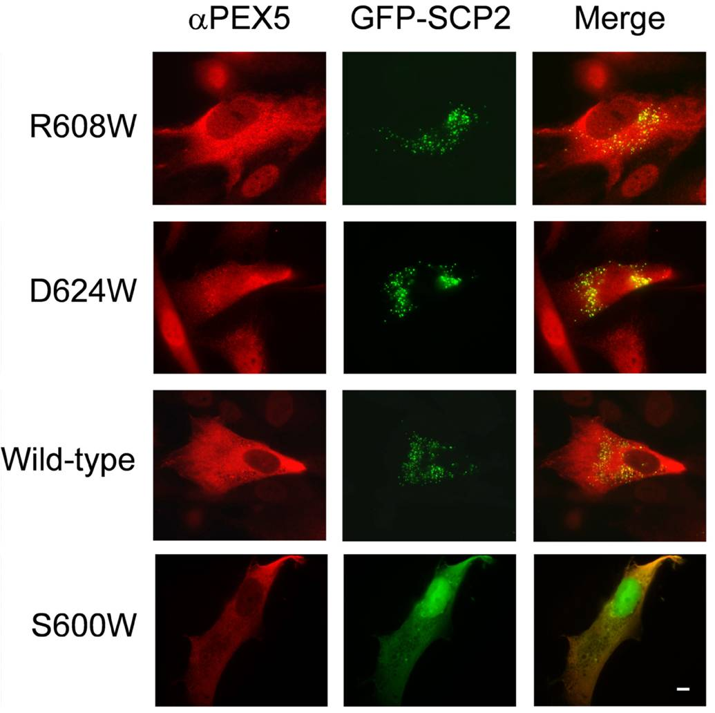 importance of peroxisomal proteins in the From existing peroxisomes pex11 and drp1 proteins mediate elongation and  fission of the peroxisomes organelles is an important event for.