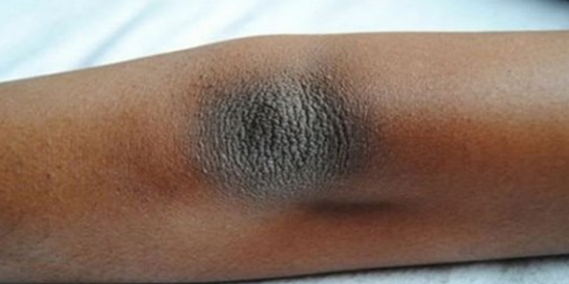 3 Tips Praktis Menghapus Kulit Kering dan Warna Gelap di Siku dan Lutut