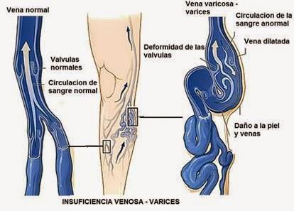 dolor pierna variz: