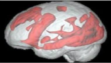 استخدام الانترنيت مفيد للدماغ