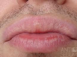 Labios vulva