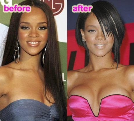 E Breast Implants Before And After Rihanna Breast implants