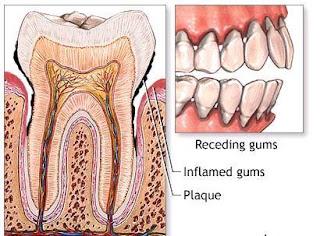 Cara Menghilangkan Karang Gigi Super Cepat Alami