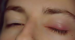 Obat mata bengkak tidak boleh sembarangan Bahaya
