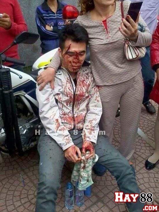 141 bị tố vụt chảy máu đầu thanh niên tại chốt - 1