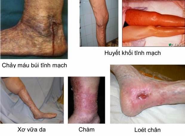 Giai đoạn cuối bệnh Suy Giãn tĩnh mạch