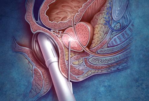 liver biopsy medications