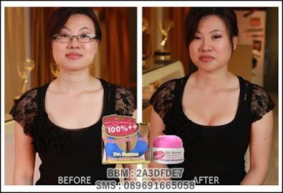 Hasil nyata payudara besar dan kencang dengan cream payudara dr susan