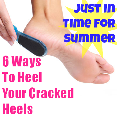 6 Ways To Heal Your Cracked Heels Just In Time For Summer