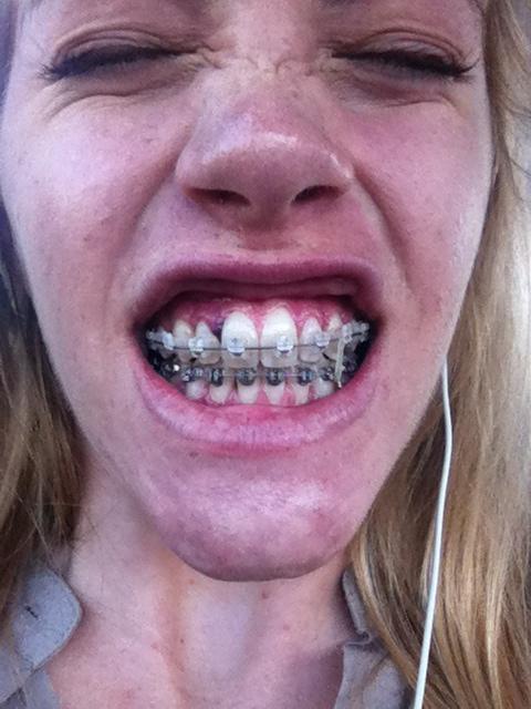Brace Yourself: Day 61: Freeing Teeth & Winds of CHANGE!
